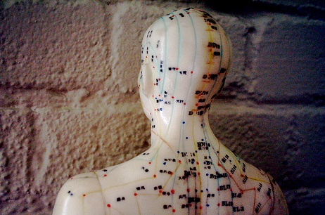 What is Community Acupuncture Like?